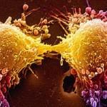 Anatomia macroscopica e microscopica della laringe - Gemelli diversi foggia ...