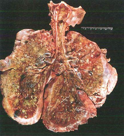 Polmoni di un paziente con fibrosi cistica in fase terminale bald mountain science - Gemelli diversi foggia ...