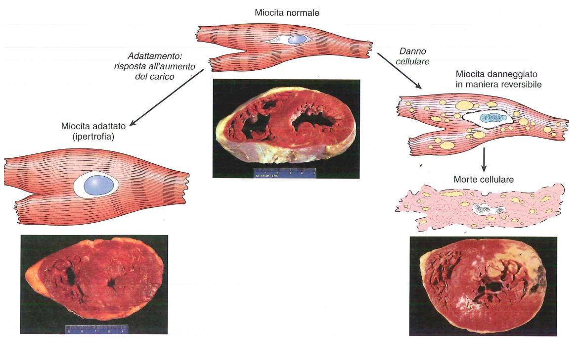 Relazioni tra cellule miocardiche normali adattate danneggiate in modo reversibile e morte - Gemelli diversi foggia ...